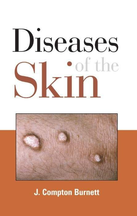 HOMEOPATHY BOOK -DISEASES OF THE SKIN - BY BURNETT JC